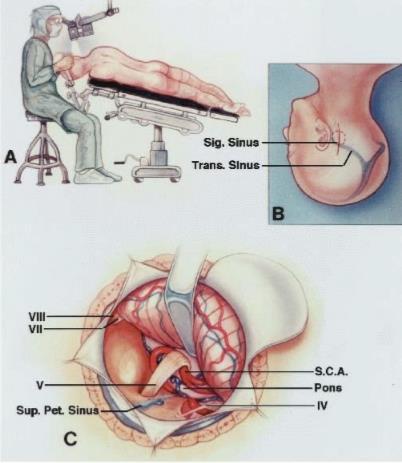 cirurgia tumor cerebral neurológica joinville