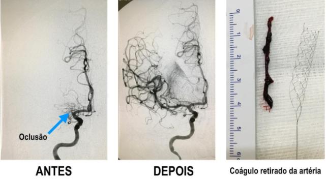 Oclusão artéria AVC Neurológica Joinville