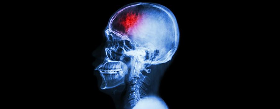 O que é AVC Neurológica