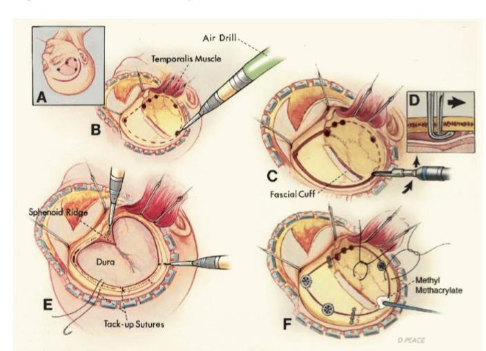 técnicas de remoção tumor cerebral