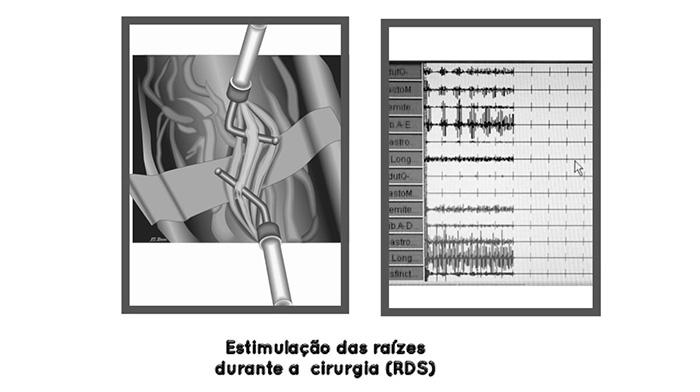 estimulação das raízes durante a cirurgia de rds