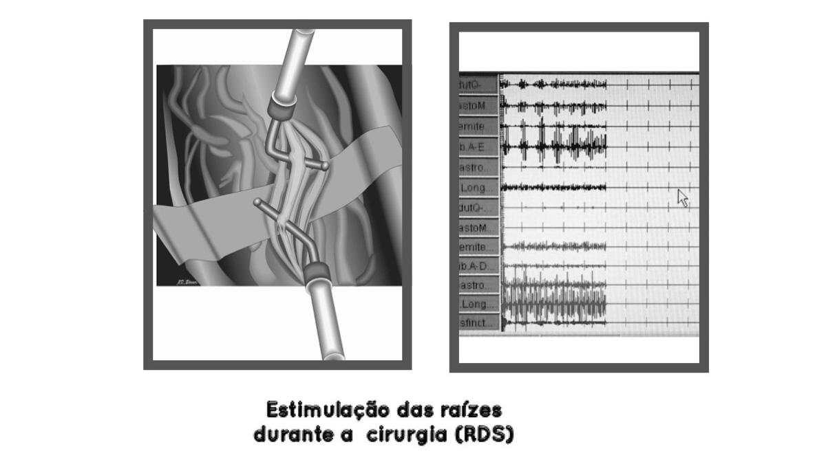 estimulação das raízes durante a cirurgia RDS